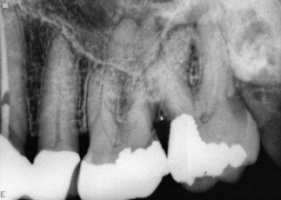 x-ray of upper molar teeth